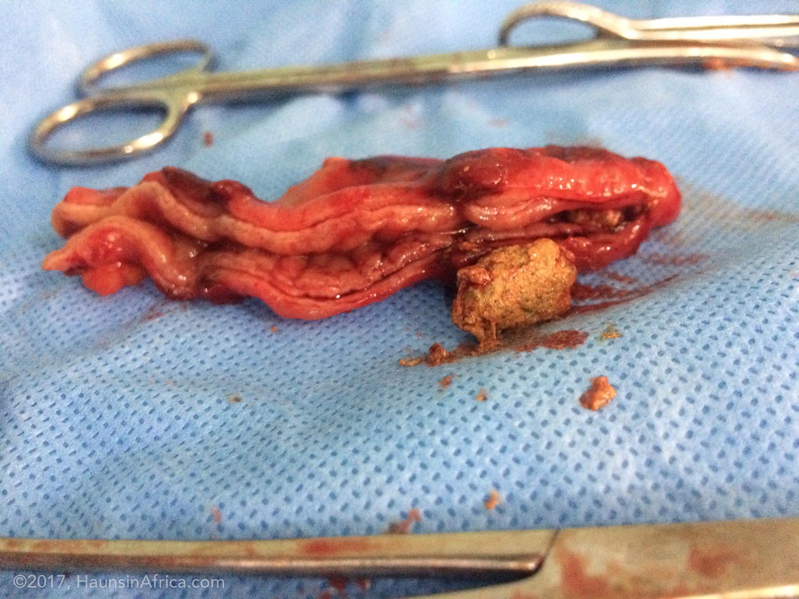 Appendicitis - The Hauns in Africa