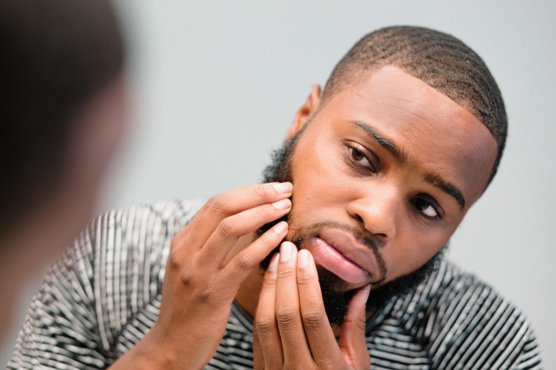 Image of Black man looking at and feeling bumps under his beard