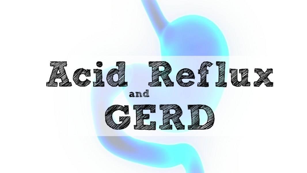 Acid Reflux and GERD