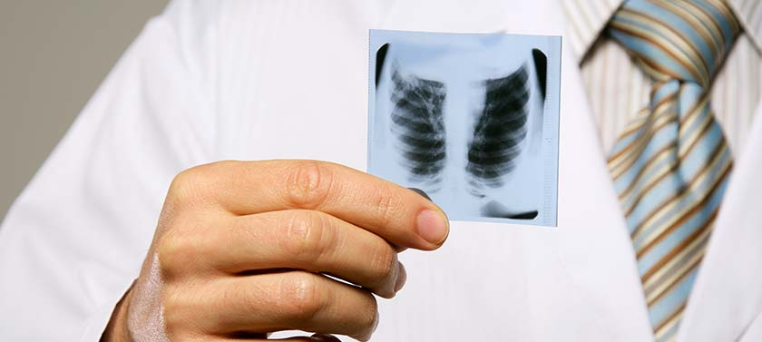A medical laboratory technician analyzes an X-ray of a patient's lungs to diagnose any respiratory issues.