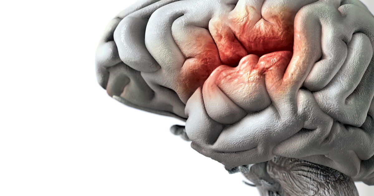 brain-stroke-jpg