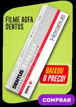 Filme AGFA Dentus - Baixou o preço