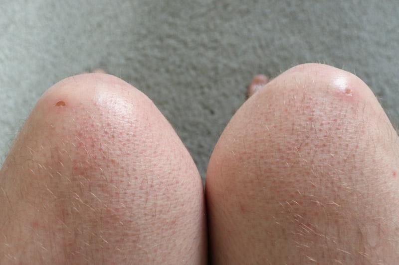 POC Oseus VPD knee pads, knee scabs