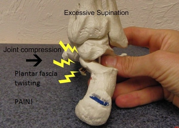 Foot supination - rear view