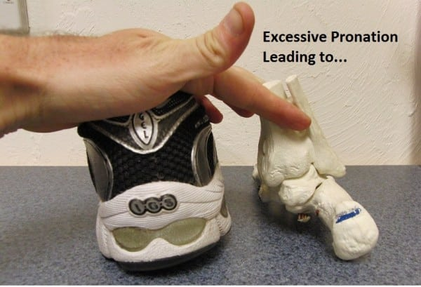 Foot and shoe position during pronation