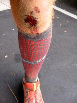 Just a flesh wound