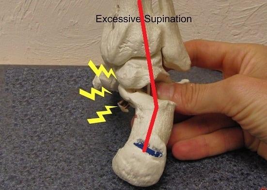 Achilles - Supination