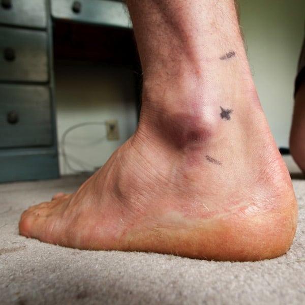 Joel Wolpert - ankle