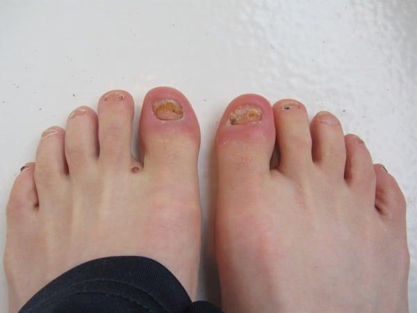 Pam Smith - three weeks post-toenail surgery