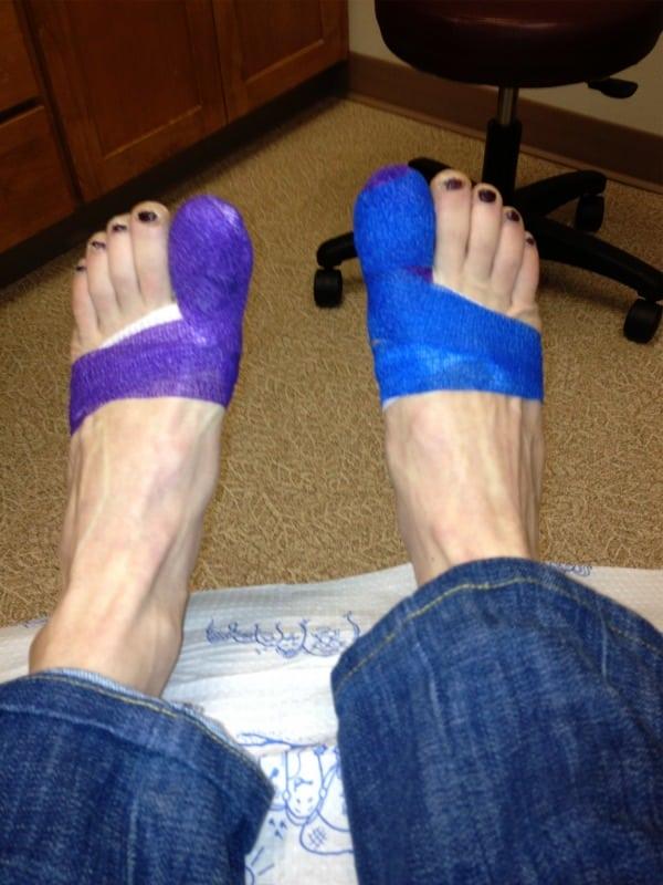Pam Smith - post toenail surgery