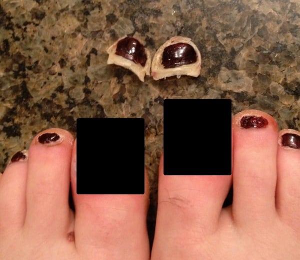 Pam Smith - Desert Solstice plus five days - big toenails gone - censored