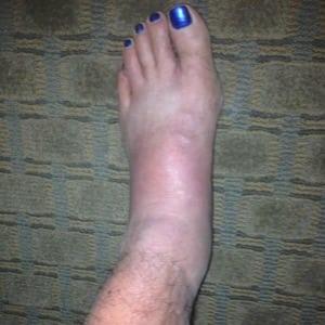 Joe Fejes - swollen foot