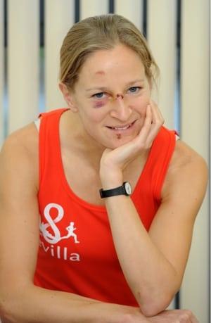 Jo Zakrzewski - injured