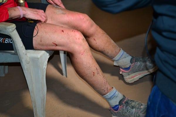 Mimi Anderson's legs