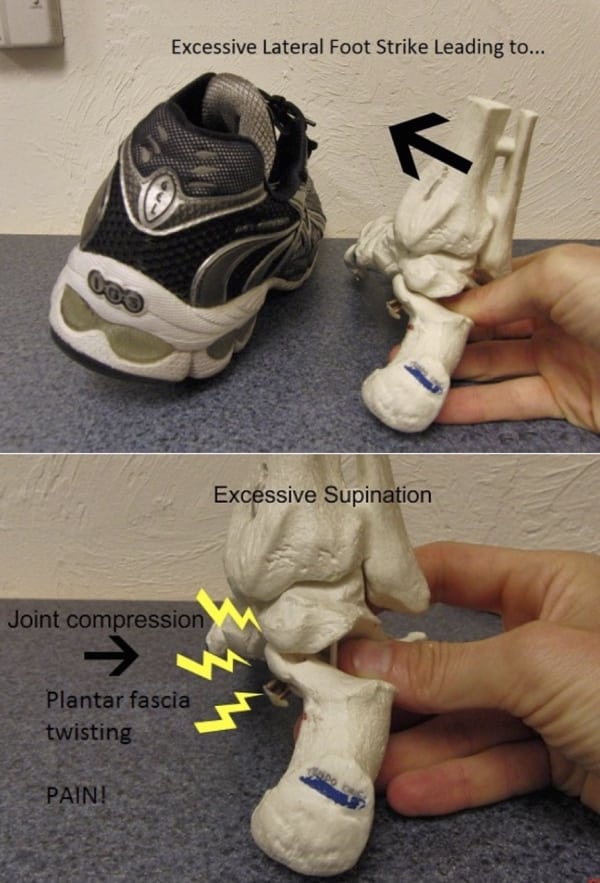 Excessive lateral footstrike diagram 600px