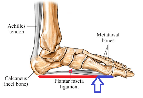 Fascial loading with a forefoot (walk or run) strike. Note the long distance of the red lever with a forefoot strike, in relation to the heel bone, where the facia inserts – and the typical location of the strain. (Picture courtesy of WebMd.com, amended by Joe Uhan)