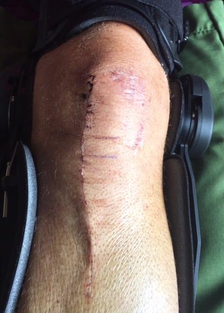 Morgan Williams 1 - knee scar
