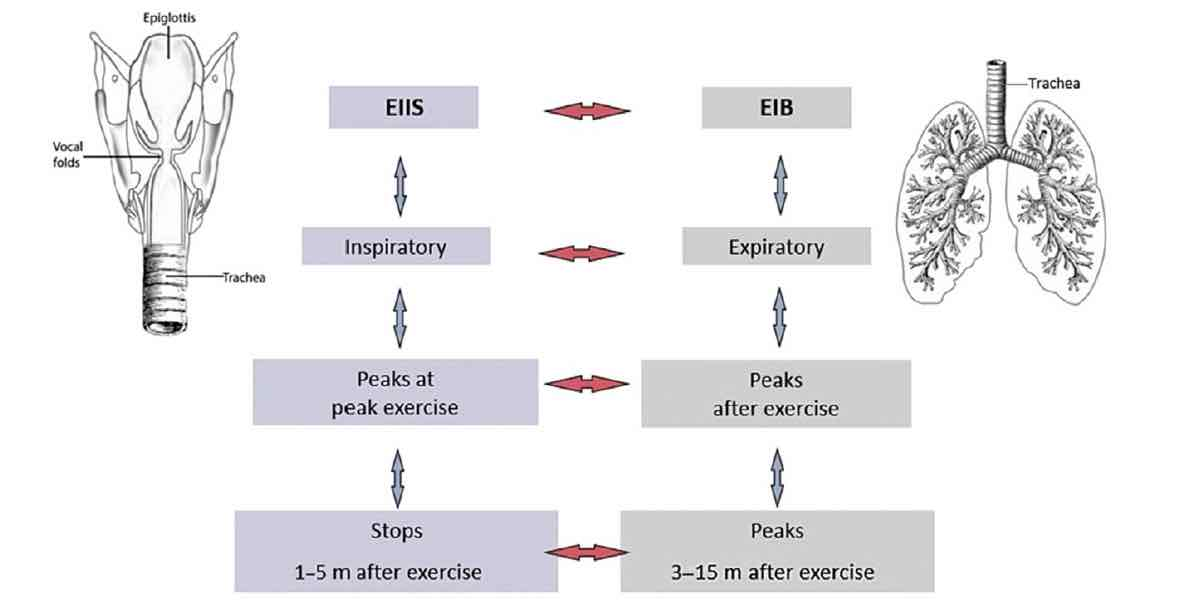 Exercise-induced inspiratory symptoms versus Exercise-induced bronchiorestriction