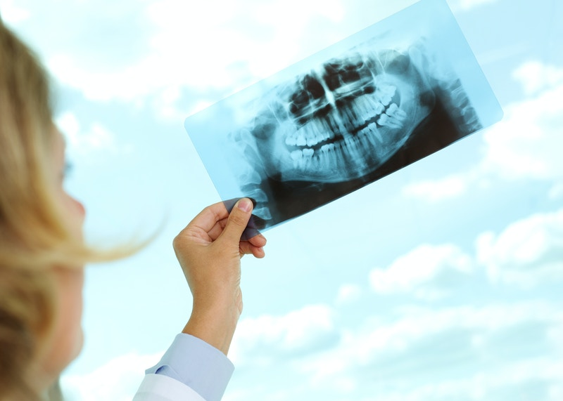 Best cerec dentist kirkland