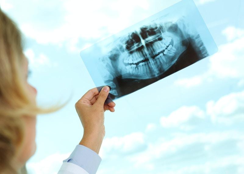 Dental care america