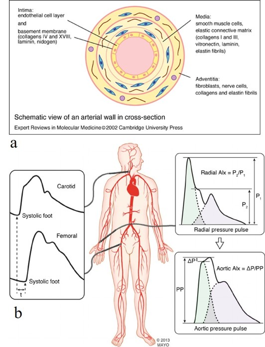 Cross-section of the artery and schematic representation of the clinical gold-standard