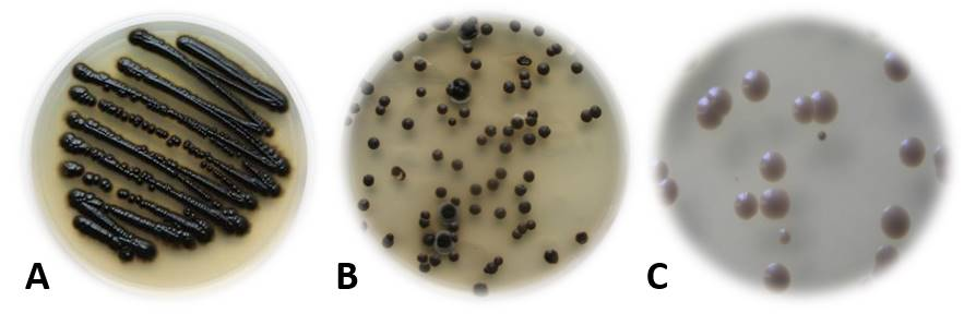 Figure 1: Pure culture (A) of black yeast Exophiala dermatitidis, rarely isolated from natural environments, but frequently isolated from human made environments, such as dishwashers (B), kitchen facilities (C), saunas, …