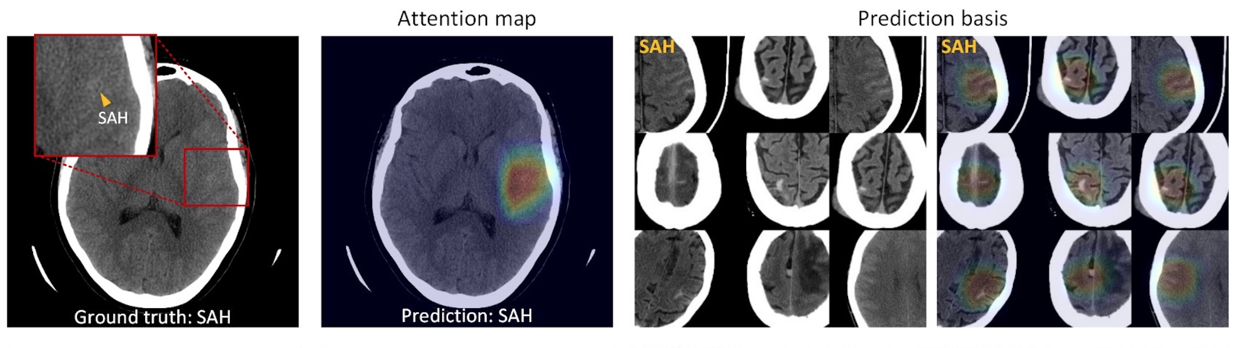 Explainable, Radiologist Mimicking, Deep-Learning for