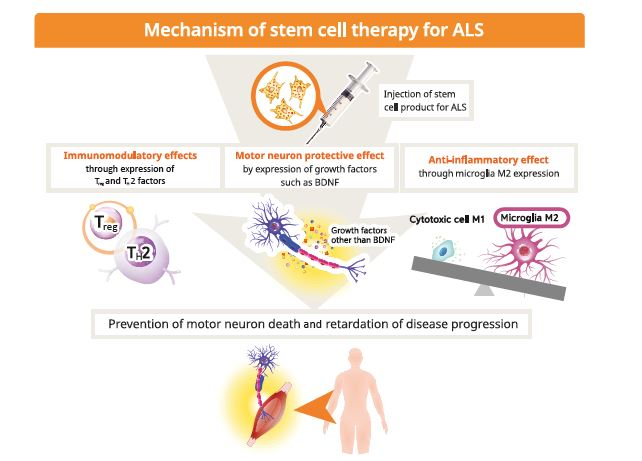 First licensed stem cell therapy for ALS | BioPharma Dealmakers