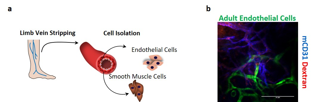 Figure 1. Vasculogenic potential of adult limb vein-isolated vascular cells for cell therapy applications.