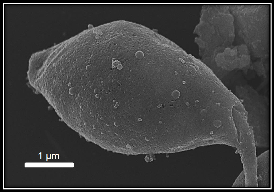Scanning Electron Microscopy of a Leishmania spp. parasite producing vesicles. Could these vesicles also be used by viruses as a camouflage and protection envelope?