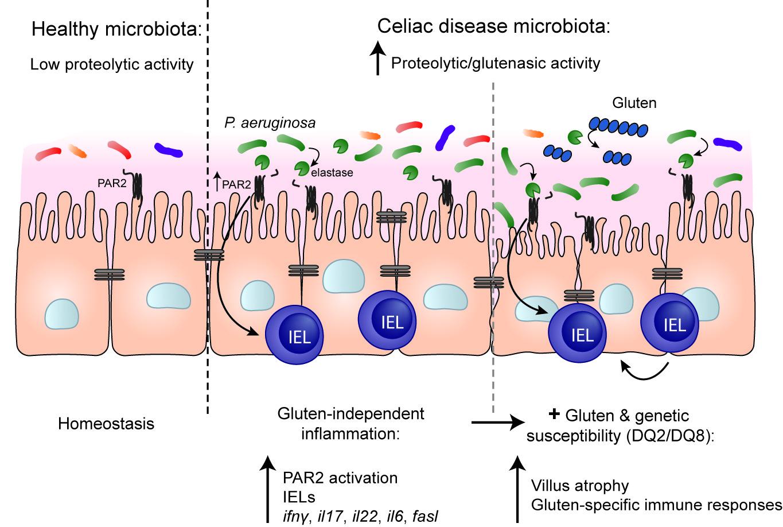 Duodenal bacterial proteolytic activity determines sensitivity to dietary antigen through PAR-2 receptor