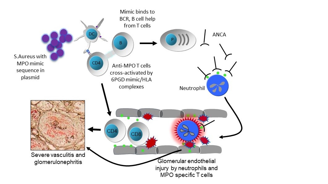 Plasmid-derived S.aureus 6PGD in ANCA-associated vasculitis