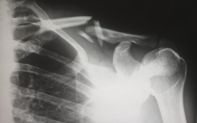 exercising with an injury like broken collarbone
