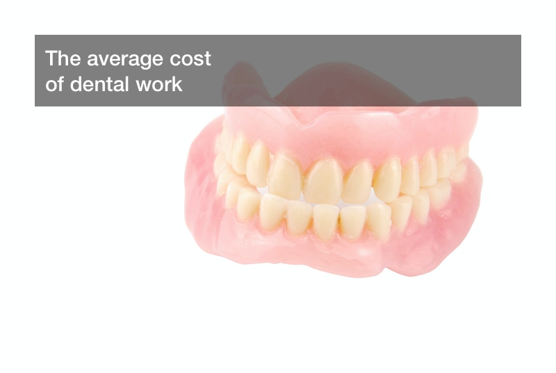 average cost of dental work