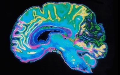 Brain Scans and Career Choice