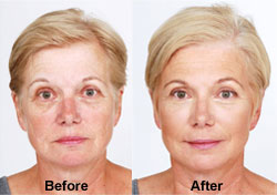 AD_DrTorgerson_BeforeandAfter_Botox2
