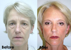 AD_DrTorgerson_BeforeandAfter_Eyes2-Oct