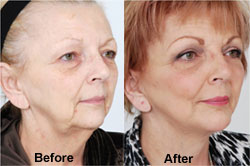 AD_DrTorgerson_Facelift_BeforeandAfter-Oct