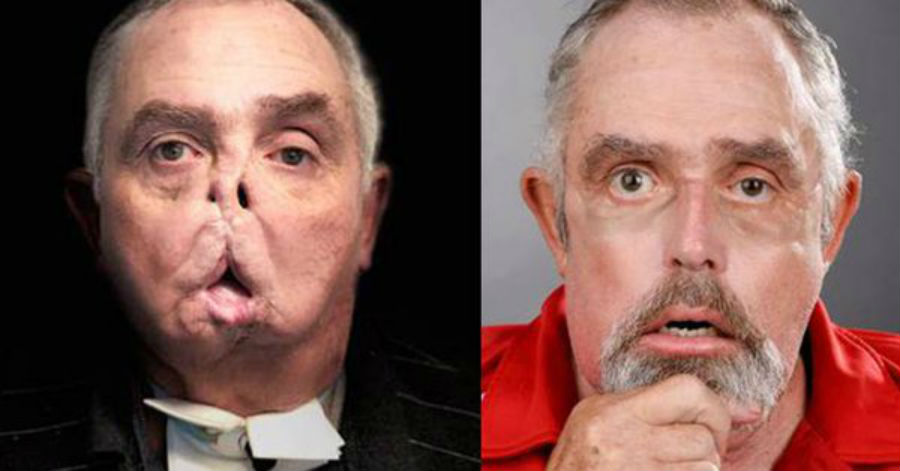 A split screen displaying the before and after photos of a man who underwent a face transplant.