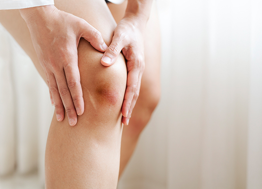 Is Bruise-Free Skin Possible? Explore the Science of